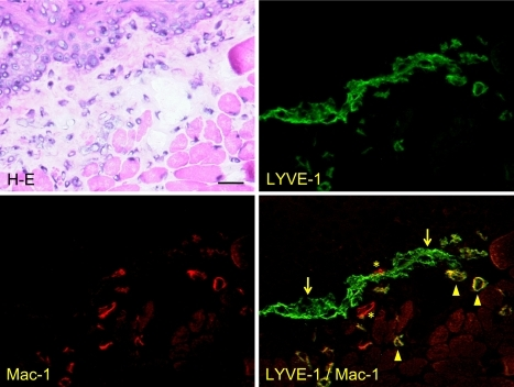 Immunostaining for LYVE-1 and Mac-1 of mouse apex linguae sections. The H-E staining shows the lamina propria mucosae and the intrinsic lingual muscle in the lamina propria mucosae. Lymphatic vessels stained with only anti-LYVE-1 antibody in green (arrows), macrophages with only anti-Mac-1 antibody in red (asterisks), and macrophages with both anti-LYVE-1 and anti-Mac-1 antibodies in yellow (arrowheads). Bar=100 µm.