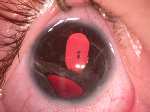 Anterior segment photograph of the right eye shows polycoria, adhesion of iris strands with peripheral cornea, and posterior emblyotoxon.