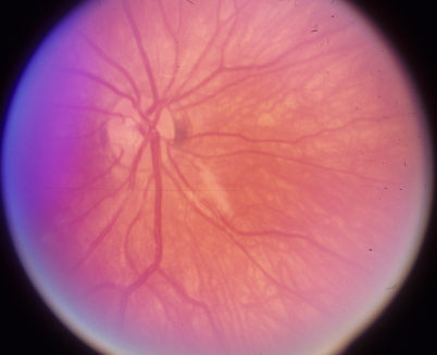 Optic disc photograph of the right eye shows normal neural rim.