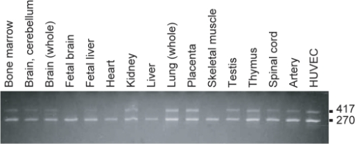 Two isoforms of alternative splicing variants of RNF213.We have tested whether exon 4 is read through or not in cDNA isolated from various human tissues and HUVECs. Representative results of human tissue RNAs and HUVEC are shown. A short isoform, which skips the exon 4, has an expected size of 270 bp (AB537889) and a long, which reads exon 4, has an expected size of 417 bp (NM_020914.4).