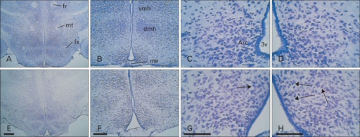 Cresyl violet staining of hypothalamus in normal (A-D) and high-fat (E-H) diet treated mice. An increase in extracellualr space is evident in the hypothalamus of high-fat diet treated mouse (E-H, arrows). This figure represents the plate 49 in the mouse brain in stereotaxic coordinates [20]. 3v, third ventricle; Arc, arcuate hypothalamic nucleus; dmh, dorsomedial hypothalamic nucleus; fr, fasciculus retroflexus; fx, fornix; me, median eminence; mt, mammillothalamic tract; vmh, ventromedial hypothalamic nucleus. Scale bars=400 µm (A, E), 200 µm (B, F), 100 µm (C, D, G, H).