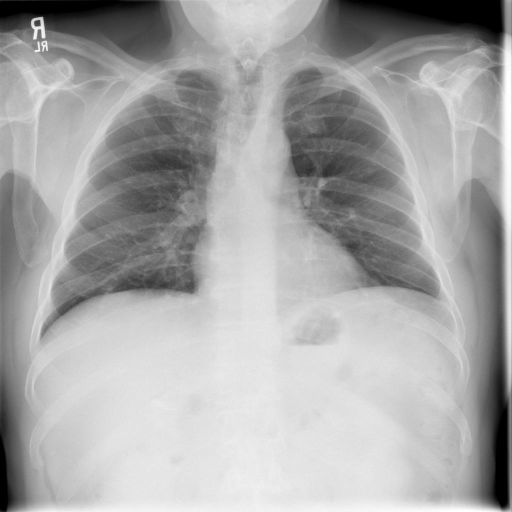 PA and Lateral of the Chest