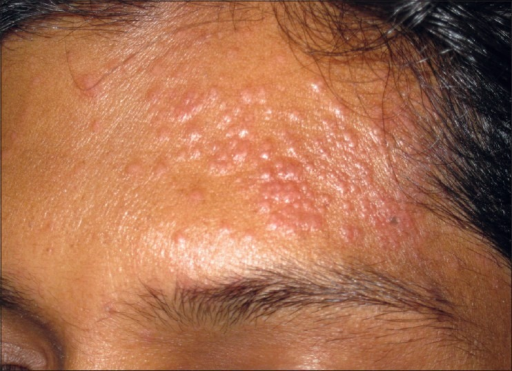 Papular lesions over forehead | Open-i