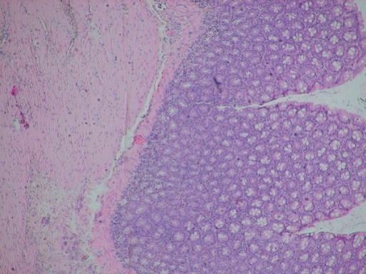 H+E ×100. Regular histopathological picture of the large intestine in group I (control group).