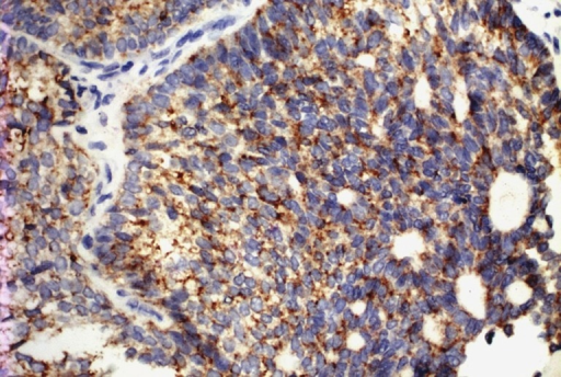 Photomicrograph of positive immunohistochemical stain for inhibin. (IHC, ×40)