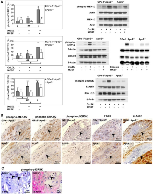 Effects of ebselen or oxLDL on MAPK phosphorylation and expression of MAPK in mice lesions.A, After pre-incubation for 3 days with 10 ng/ml MCSF, peritoneal macrophages were incubated for 5 min with 10 µg/ml oxLDL with or without MCSF or MCSF with or without ebselen. Cellular protein was extracted and protein samples (0.4 mg/ml) were analyzed by Western blot with specific antibodies: anti-phosphorylated MEK1/2 or anti-MEK1/2 (A, upper panel, right), anti-phosphorylated ERK1/2 or anti-ERK1/2 (A, middle panel, right) or anti-phosphorylated p90RSK or anti-RSK1/2/3 (A, lower panel, right) antibodies (representative experiments). ß-Actin or Actin were used as control. Quantitative results were calculated by band densitometry with the intensity of phosphorylated MEK1/2, ERK1/2, p90RSK normalized to total MEK1/2, ERK1/2, RSK1/2/3 (A, upper, middle and lower panel, left). Data represent mean ± SD of 5–7 separate experiments. * p<0.05 or ** p<0,01 above the histogram indicate statistically significant differences between the different genotypes and below the histogram compared with cells without treatment of MCSF or oxLDL. B, expression of phosphorylated MEK1/2 and ERK1/2 in parallel with staining of macrophages and SMCs in sequential sections of the aortic arch of both GPx-1−/−ApoE−/− (upper panels) and ApoE−/− (lower panels) mice. There is more pronounced expression of phosphorylated ERK1/2 and MEK1/2 both in macrophages and SMCs of GPx-1−/−ApoE−/− compared with ApoE−/− mice. C, representative double immunohistochemical staining for p-p90RSK (nuclei, brown), macrophages or SMCs (red) in ApoE−/− mice demonstrating expression of p-p90RSK in macrophages rather than in SMCs (arrowheads). The vessel lumen is to the upper left-hand corner. The demarcation between intima and media is indicated by arrowheads.