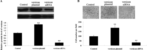 Effects of versican on MM A375 cell migration. (A) Western blot analysis was performed to determine the protein expression levels of versican in A375 cells transfected with versican plasmid or versican siRNA. (B) Cell migration analysis was performed using A375 cells transfected with versican plasmid or versican siRNA. **P<0.01 vs. control. MM, malignant melanoma.