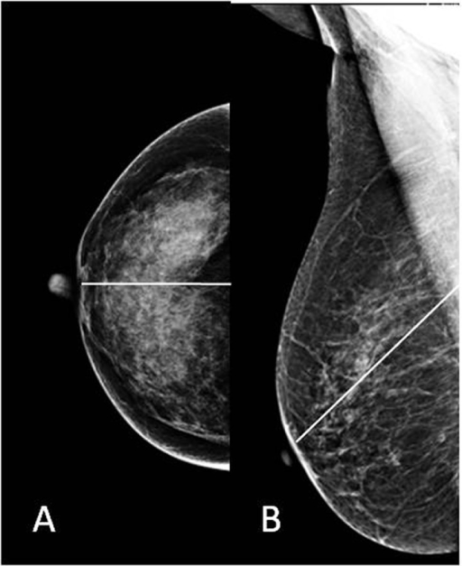 Pectoralis–nipple line on (A) CC view and (B) MLO view.