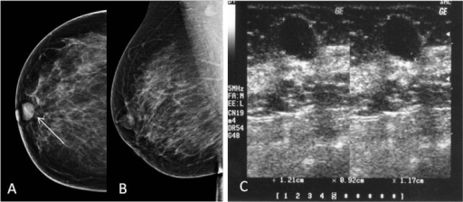 (A) A well-defined lesion seen on CC view. Not well appreciated on an MLO view and (B) a cystic space occupying lesion seen on ultrasound.
