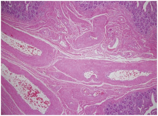 Microscopic appearance of the polypoid mass. Dilated tortuous vessels and vein wall thickenings can be seen in the submucosa (H&E stain, ×100).