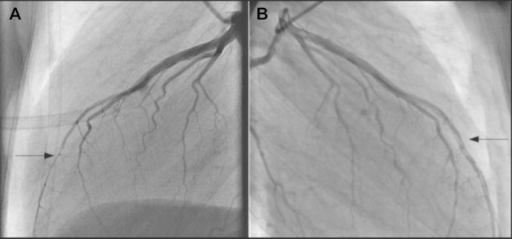 The CAG (A) shows the compression of the LAD coronary artery during the systole resulting in narrowing and (B) performed after the second chest pain attack demonstrating a dissection in the distal left anterior descending coronary artery.