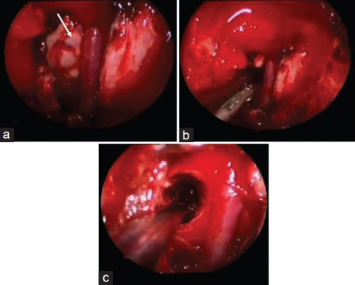Endoscopic view of surgical field. View of basilar artery and hemorrhagic staining of pons (arrow) (a). Expulsion of blood products following pial opening (b). Surgical cavity following resection of cavernous malformation (c)