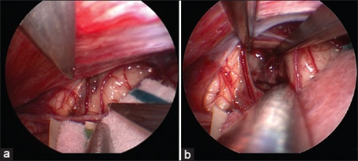 Endoscopic view of surgical field demonstrating hemorrhagic staining of the left posterolateral midbrain (a); Resection of the cavernous malformation following pial opening (b)