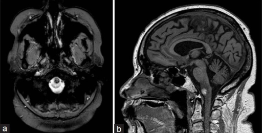 Preoperative axial gradient echo sequence MRI (a) and sagittal T1-weighted MRI (b) demonstrating a ventral medulla cavernous malformation