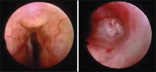 Fibrobroncoscopy showing reduction of the 25% of the tracheal lumen in its distal tract extended to the right upper lobe bronchus caused by important mucosal hypertrophy (case 1)