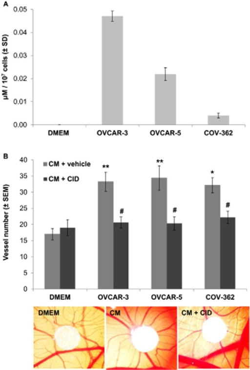 Ovarian cancer cells produce LPI and induce chicken CAM angiogenesis in a GPR55-dependent manner. (A) Quantification of LPI in conditioned medium from three different ovarian cancer cell lines (OVCAR-3, OVCAR-5, COV-362). (B) Quantification of vessel numbers around white filter paper in an in vivo CAM assay (by ImageJ). Filter papers were loaded with unconditioned DMEM or 24 h conditioned DMEM (CM) of three different ovarian cancer cell lines (OVCAR-3, OVCAR-5, COV-362), respectively, with or without vehicle or GPR55 inhibitor CID16020046 (CID). Representative macroscopic pictures of CAM angiogenesis around filter paper containing control DMEM, OVCAR-5 CM or OVCAR-5 CM with CID. n = 6–9; *P < 0.05; **P < 0.01, significantly different from vehicle control; #P < 0.01, significantly different from corresponding ovarian cancer CM. anova followed by Bonferroni test.