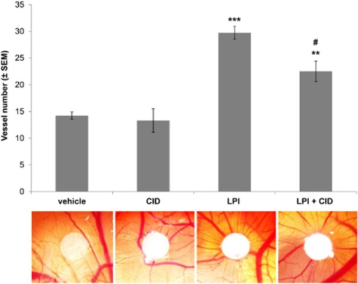 Pharmacological inhibition of GPR55 prevents LPI-induced angiogenesis in an in vivo chicken CAM assay. Quantification (by ImageJ) of vessel numbers around white filter paper in an in vivo CAM assay after 72 h. Filter papers were loaded with vehicle, 20 μM GPR55 inhibitor CID16020046 (CID), 10 μM LPI or both. Images are respective representative macroscopic pictures. n = 6–9; ***P < 0.001; **P < 0.01, significantly different from vehicle control; #P < 0.001, significantly different from LPI treatment. anova followed by Bonferroni test.