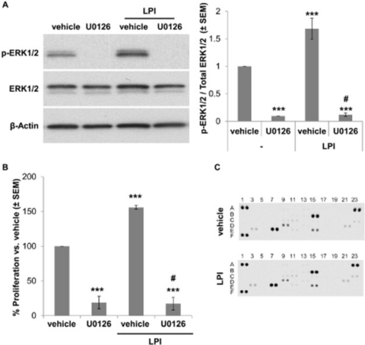 LPI-induced ECFC proliferation increase is blocked by ERK1/2-inhibitor U0126. (A) Western blot analysis of ERK1/2 phosphorylation in ECFC lysates after 30 min pre-incubation with vehicle or 10 μM U0126 and 15 min exposure to 10 μM LPI. Quantification of the ratio of p-ERK1/2 normalized to β-actin immunostaining. n = 6; ***P < 0.001, significantly different from vehicle control; #P < 0.001, significantly different from LPI-treated ECFCs. anova followed by Bonferroni test. (B) Proliferation increase of ECFCs treated with vehicle or U0126 (48 h). n = 6; ***P < 0.001, significantly different from vehicle control; #P < 0.001, significantly different from LPI-treated ECFCs. anova followed by Bonferroni test. (C) Proteome profiler human angiogenesis array of neonatal-ECFC supernatants after 24 h treatment with vehicle or 10 μM LPI. Pixel intensity was quantified by ImageJ.