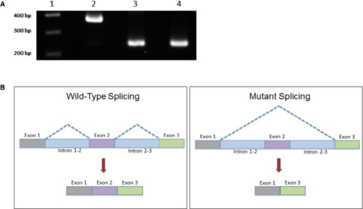 Minigene analysis reveals exon skipping. (A) RT-PCR results showing skipping of the first coding exon of PRIMA1 due to the c.93+2T>C mutation 48 h following transfection into HEK293T cells. A 100 base pair marker (lane 1) was run. The 124 base pair first exon of PRIMA1 is only expressed from the wild-type minigene construct (lane 2), resulting in a 369 base pair product. Whereas the mutant (lane 3) and empty vector control (lane 4) both lack the first exon producing 245 base pair products. The same result was observed in cells harvested 24 h posttransfection (data not shown). (B) Schematic illustration of exon skipping caused by the c.93+2T>C mutation compared to the wild-type splicing.