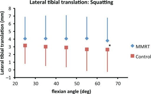 Lateral translation of the tibia with respect to the femur during squatting. Error bars represent standard deviation. *Significant differences between limbs (P < .01). Once again, the affected limb exhibits significantly more lateral tibial translation than the contralateral limb.