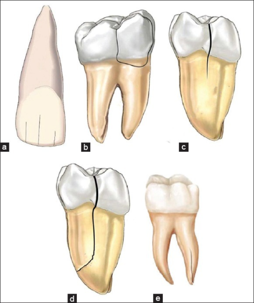 a) Depicting visible fracture lines within the enamel | Open-i