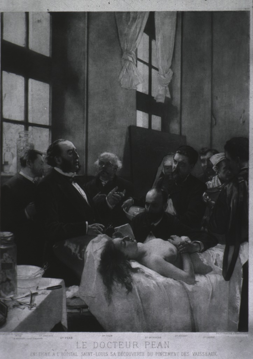 <p>View of a half naked woman on a table surrounded by physicians.  Dr. Pean is in the foreground.</p>