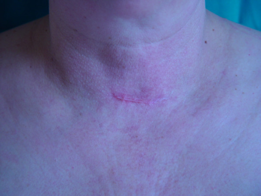 Minimally invasive video-assisted thyroidectomy. Using video-assisted endoscopic technique, the neck scar is only 1,5-maximum 3 cm in length on suprasternal notch, easily covered by a shirt.