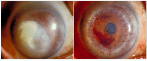 Left, preoperative appearance showing lipid deposition covering pupil. Right, postoperative appearance 2 weeks after DLKP. There is blood in the interface between graft and host.