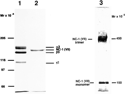 Electrophoretic analysis of immunoaffinity-purified  laminin 5 from cell culture media and type VII collagen–NC-1  from collagenase extracts of amniotic membranes. 2 μg of materials affinity purified on mAb 6/F12 from SCC25 cell culture medium (lane 1), and 2 μg of materials affinity purified on mAb NP-32 from collagenase extracts of amniotic membranes (lane 2)  were separated by SDS-PAGE after reduction on a 3–7.5% gradient polyacrylamide gel and visualized by Coomassie blue staining. Consistent with previous results, the reduced bands representing subunits of laminin 5 (α3, 165 kD; β3, 140 kD; γ2, 155 and  105 kD) and type VII collagen–NC-1 (150 kD). The electrophoretic migration position of purified NC-1 before disulfide-bond reduction is shown in lane 3. Migration positions of the molecular weight markers are indicated to the left of each gel.