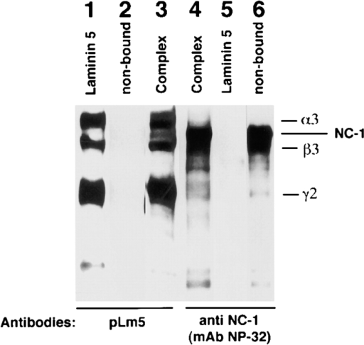 Western blot analysis of the laminin 5–type VII  collagen–NC-1 complex immunoaffinity purified from  collagenase extracts of amniotic membranes. Type VII  collagen–NC-1 was first affinity purified on mAb NP-32  from collagenase extracts of  amniotic membranes. Eluted  fractions of NC-1 were  pooled, dialyzed against  PBS, and passed over a mAb  6F12 affinity chromatography column. Bound materials were immunoblotted with polyclonal anti-laminin 5 (pLm5; lane 3), and  anti-NC-1 (mAb NP-32, lane 4). The bound material shows the  pattern obtained for purified laminin 5 (lane 1), which does not  contain NC-1 (lane 2) and for purified NC-1 (not shown, but  identical to lane 6). The nonbound fraction contains NC-1 only  (lane 6) but no laminin 5 (lane 2).