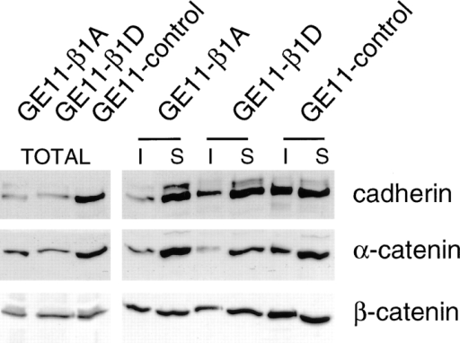 Expression of cadherin, α-, and β-catenin and their association with the cytoskeleton is reduced in GE11-β1A and GE11-β1D cells as compared with that in GE11-control cells. Cadherin and catenin Triton X-100 solubility was assayed on immunoblots containing proteins (50 μg protein) from total cell lysates and from 1% Triton X-100–soluble (S) and -insoluble (I) fractions of GE11-control, GE11-β1A, and GE11-β1D cells. Immunoblots were probed for pan-cadherin, α-catenin, and β-catenin.