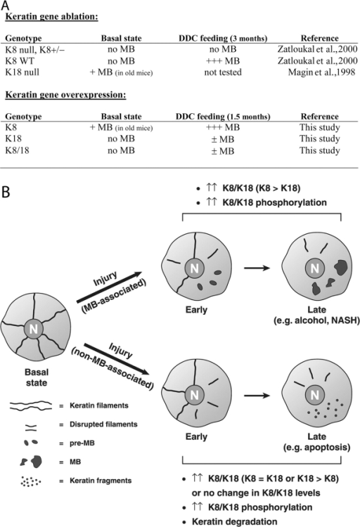 Summary of MB formation in different mouse genotypes, and a model of MB formation depending on K8 versus K18 protein levels. (A) Summary of MB formation under basal (i.e., spontaneous) and DDC feeding (i.e., induced) conditions in keratin mouse models. (B) A model depicting two types of liver injury: (1) MB-associated liver injury that progressively leads to MB formation in association with keratin overexpression (K8 > K18) and keratin hyperphosphorylation; and (2) non–MB-associated liver injury that results in keratin overexpression (K8 = K18 or K18 > K8) or maintenance of keratin levels coupled with keratin hyperphosphorylation. NASH, nonalcoholic steatohepatitis.