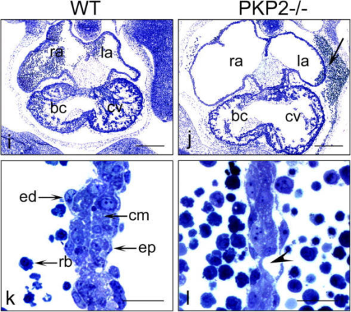 Phenotypes of wt and plakophilin 2–deficient (pkp2−/−) mutant embryos at E10.75. (a and b) External appearance of embryos. In the mutant embryo, blood has accumulated in the pericardial and peritoneal cavities, which are connected at this embryonal stage (Kaufman and Bard, 1999). (c–f) The vasculature of the yolk sac contains red blood cells in the wt, but not in the pkp2−/− embryos, as shown by whole-mount photography (c and d) and microscopy of hematoxylin- and eosin-stained sections of endothelia (e and f). (g and h) The vasculature of wt and pkp2−/− mutant yolk sacs is intact, as shown by anti-PECAM immunostaining of endothelial cells. (i and j) Light microscopy of toluidine blue–stained transverse sections of embryonic hearts: note the reduced thickness of the atrial walls and the reduced trabeculation of the ventricle, as well as blood accumulation in the pericardial cavity of pkp2−/− mutant hearts (arrow); ra and la, right and left atria; bc and cv, bulbus cordis (future right ventricle) and common ventricle (future left ventricle). (k and l) Higher magnifications of atrial walls in wt and plakophilin 2 −/− mutant hearts. In general, the atrial walls appear thinner in the mutant (l). The position of a possible small leakage site is indicated (arrowhead) in the mutant hearts (l); ed, endocardial cells; ep, epicardial cells; cm, cardiomyocytes; rb, red blood cells. Bars: 1,000 μm (a, b, c, d, g, and h), 100 μm (e and f), 300 μm (i and j), 50 μm (k and l).