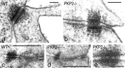 Electron micrographs showing near-normal morphology of adhering junctions in epithelial tissues at E10.75 of wt and plakophilin 2–deficient embryos. (a and b) In the periderm of the developing epidermis of both wt (a) and pkp2−/− (b) embryos, desmosomes with similar ultrastructure are seen, often adjacent to small adherens junctions (e.g., to the left of the desmosome in b). (c, wt; d and e, pkp2−/−) Similarly, both desmosomes and adherens junctions are seen side by side in other forming epithelia such as in the stomach mucosa. The higher magnification picture (e) reveals normal plaque thickness and density, trilaminar membrane appearance, and bridge structures in the intermembranous desmoglea structure. Bars: 0.1 μm (a, b, and e) and 0.5 μm (c and d).