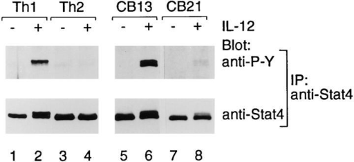 IL-12–dependent signaling in human Th1 and Th2 cell lines  and clones. IL-12 induces Stat4 phosphorylation in human Th1 but not  Th2 cells. Th1 and Th2 lines generated from cord blood lymphocytes as  in Fig. 1 A were harvested on day 10 after priming. Th1 (CB13) and Th2  (CB21) clones were harvested on day 13 after restimulation. 5 × 106 cells  were washed and incubated 15 min at 37°C in medium with or without  2 ng/ml IL-12 followed by the preparation of whole cell extracts and immunoprecipitation with anti-Stat4 antiserum. Precipitated proteins were  separated by SDS-PAGE (8%), transferred to nitrocellulose, and probed  with anti-phosphotyrosine antibody 4G10 (anti-P-Y, top). As a control for  Stat4 expression, blots were stripped and reprobed with anti-Stat4 antibodies (bottom).