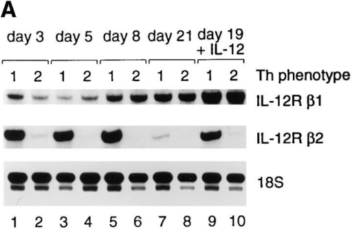Transcripts encoding IL-12 receptor subunits in human Th1  and Th2 cells. (A) IL-12R β2 transcripts are selectively expressed in human Th1 cells. Th1 and Th2 lines generated from cord blood lymphocytes were harvested on the indicated time after priming. In lanes 9 and  10, cells were washed on day 19 and incubated for 48 h in medium containing 2 ng/ml IL-12 before RNA extraction on day 21. Transcripts encoding the IL-12R β1 subunit (top), the IL-12R β2 subunit (middle) and  an 18S RNA gene fragment as loading control (bottom) were quantitated  with ribonuclease protection assays as described in Materials and Methods.  (B) Expression of IL-12R β1 and β2 mRNAs in human Th1 (CB13) and  Th2 (CB21) T cell clones. Th1 and Th2 cells were incubated on day 11  after restimulation for 48 h with or without 2 ng/ml IL-12, followed by  RNA extraction on day 13. Quantitation of the IL-12R β1 and β2 transcripts in IL-12 treated and untreated Th1 and Th2 cells was performed  by RNase protection assays.