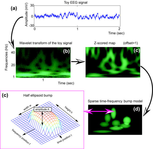 Sparse time-frequency bump modeling of a toy EEG signal. (a) The toy EEG signal (Biosemi system, 2048 Hz sampling rate, 2 sec), recorded in rest condition with eyes closed, is first (b) transformed using complex Morlet wavelets, then (c) the map is z-scored (offset = 1). Sparse time-frequency bump modeling decomposes the z-scored map into a sum (d) of half ellipsoid (c) parametric functions (windows of 4 cycles, pruned to the 8 first bumps).
