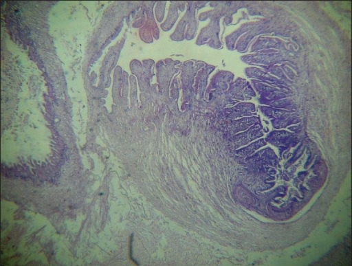 Histopathology of subcutaneous nodule showing cysticercosis (H and E, ×10)