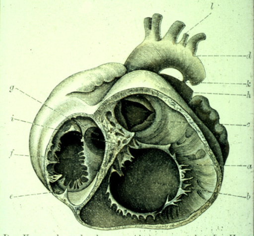 This illustration from the atlas of the Baron von Rokitansky shows the short axis of the ventricular mass viewed from the ventricular aspect in a specimen with congenitally corrected transposition.