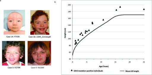 facial features and height of ezh2 mutation-positive in | open-i, Skeleton