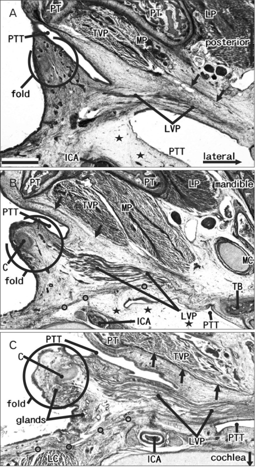 Mucosal fold of the lateral pharyngeal wall and pharyngotympanic tube cartilage: three fetuses. Azan staining. Horizontal sections. All panels exhibit the inferior part or wall of the pharyngotympanic tube (PTT). The cartilage has not yet appeared in the specimen shown in (A) (crown-rump length [CRL], 101 mm), but the levator veli palatini muscle (LVP) has begun to extend into the putative mucosal fold at the pharyngeal opening of the PTT. In (B) (CRL, 100 mm) and (C) (CRL, 116 mm), the tubal cartilage (C) is almost 2 mm in length and these panels show the medial end. The LVP employs the mucosal fold containing the cartilage to guide its downward path to the palate. A fascia (circles), along the LVP, extends posteromedially to cover the longus capitis muscle (LC, panel C). Arrows indicate another fascia along the tensor veli palatini muscle (TVP). The internal cartotid artery (ICA) is exposed to a loose space (stars) on the posterior side of the PTT. LP, lateral pterygoid muscle; MP, medial pterygoid muscle; PT, pterygoid process;TB, temporal bone. Scale bar=1 mm (A-C).