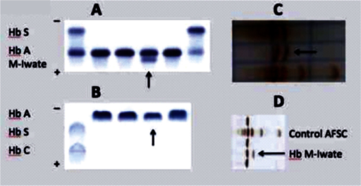 Hemoglobin electrophoresis in alkaline (A) and acid gel (B), and by isoelectric focusing (C and D). Hb M Iwate is anodal to Hb A in alkaline gel and undistinguishable from Hb A in acid gel. Its color is brown in contrast to the vivid red of Hb A before trichloroacetic acid is applied to the isoelectric focusing gel (C). It runs between Hb F and Hb S (closer to Hb F) after the gel has been fixed and dried (D).