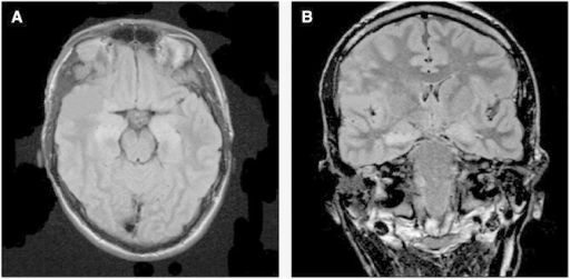 MRI FLAIR sequence (A: axial view, B: coronal view) on Day 6 demonstrating bilateral medial temporal lobe hyperintensity.