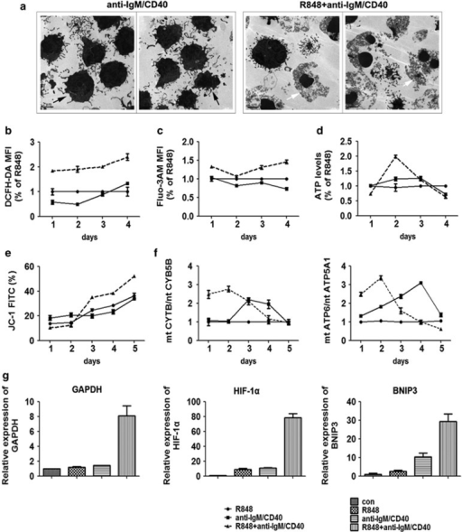 Co-activation of TLR7 and BCR pathways promotes the formation of necrotic ultrastructure, mitochondrial dysfunction and hypoxia of B cells. (a) The ultrastructure of mouse B cells treated with anti-IgM/CD40 or joint stimulation (R848+anti-IgM/CD40) for 4 days by transmission electron microscopy. Black arrowheads denote cell membrane integrity in the anti-IgM/CD40 treated cells. White arrowheads denote the swelling of cellular organelles and membrane breakdown in cells treated with joint stimulation. Among 200 cells counted, 92 showed necrotic morphology as presented in (a) in joint stimulated sample, whereas only 16 such cells were seen in anti-IgM/CD40-treated sample. (b) The mouse B cells stained with DCFH-DA for 4 days were detected by flow cytometry, and ROS production was assessed according to changes in the fluorescence intensity of DCF, the oxidation product of DCFH-DA. (c) The mouse B cells stained with Flou3-AM for 4 days were detected by flow cytometry, and Ca2+ influx was assessed according to changes in the fluorescence intensity of Flou3 and Ca2+combination. (d) The intracellular ATP levels were determined by the luciferase method and normalized by protein content. (e) Mitochondrial membrane potential (ΔΨm) of mouse B cells in each treatment group was analyzed by JC-1 staining for 5 days. Loss of ΔΨm was demonstrated by the percentage of JC-1 FITC. (f) Mitochondrial DNA quantification of mouse B cells using nuclear DNA (nDNA) as a reference was carried out by real-time PCR, and the results are presented as mtDNA/nDNA ratio. (g) The relative mRNA expression of target genes GAPDH, HIF-1α and BNIP3 in mouse B cells with different stimulations were detected by real-time PCR on day 4, and β-tubulin was used as a reference. Mouse B cells without treatment as the control group were collected immediately after isolation from the spleen that were used to compare the target gene expression level