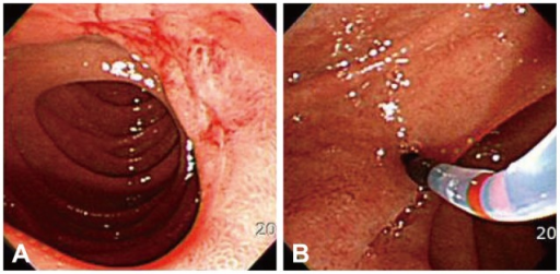 First endoscopic retrograde cholangiopancreatoscopy finding. (A) A linear ulcer scar on the duodenal second portion, which is accompanied with fibrotic changes around the lesion, is circumferentially observed. (B) However, any specific shapes of the ampulla are not found.