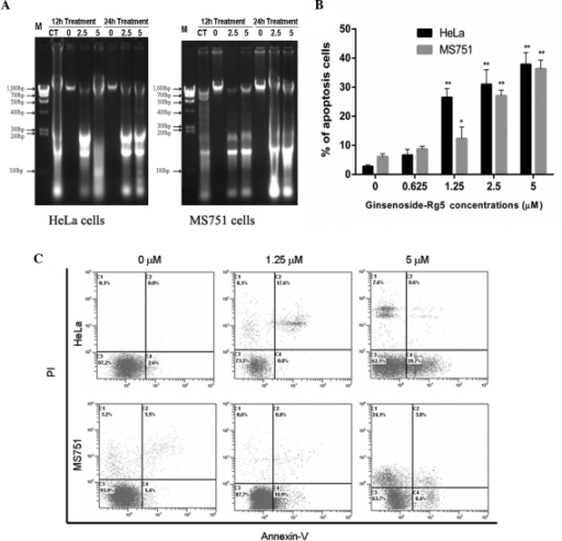 Ginsenoside-Rg5 induces apoptosis in HeLa and MS751 cells. (A) Apoptosis-associated DNA fragmentation in HeLa and MS751 cells. (B) Apoptotic rates of HeLa and MS751 cells treated with ginsenoside-Rg5 (0–5 μM) and MNNG (10 μM) for 24 h. Data are expressed as the mean ± standard error of the mean of three independent experiments. *P<0.05 and **P<0.01, vs. negative control (0 μM ginsenoside-Rg5). P-values refer to the comparison of baseline independent characteristics. (C) Flow cytometric analysis of apoptosis using Annexin-V and PI double-staining. MNNG, N-methyl-N-nitro-N-nitrosoguanidin; M, marker of DNA ladder; CT, positive control (10 μM MNNG); PI, propidium iodide.