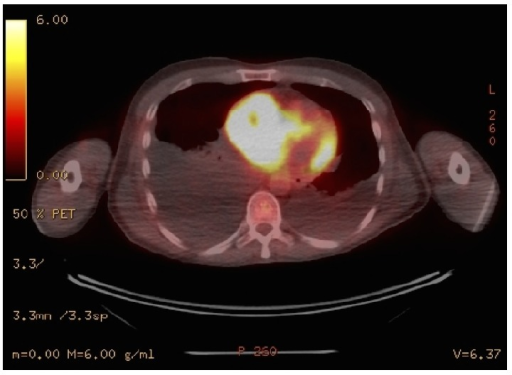 PET/CT scan displaying metastatic masses in right atrium and liver, as well as bilateral pleural effusion due to heart failure.