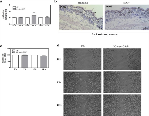 CAP effects on keratinocyte proliferation and migration.(a) Cell proliferation was determined using a XTT proliferation assay 24 h, 48 h and 72 h after the CAP exposure for 2 min and compared to control (ctr.). (b) Representative examples of immunohistochemical stains of formalin-fixed paraffin-embedded skin sections using Ki67, a proliferation marker that stains the nuclei of cells in G1, S, G2 and early mitosis. Highly proliferative, Ki67-positive keratinocytes were observed within the basal layer of the epidermis (I) and the bulge region of the hair follicle (II), whereas no difference between 5x placebo or 5x CAP treatment for 2 min was observed. Magnification as indicated. (c, d) Cell migration was determined using a wound healing assay. The migration rate was calculated 7 h and 12 h after culture insert was removed and displayed as the percentage relative to untreated control (ctr. set 100%). Representative images are shown immediately after culture insert was removed (0 h) and 7 h and 12 h later.