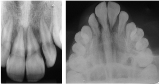 Initial radiographic findings.
