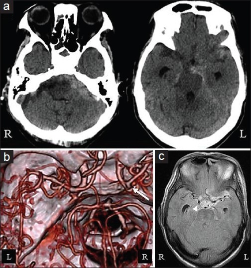 a) A CT scan taken on admission showed a subarachnoid | Open-i